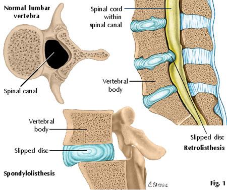 cervical spine manipulation with retrolisthesis